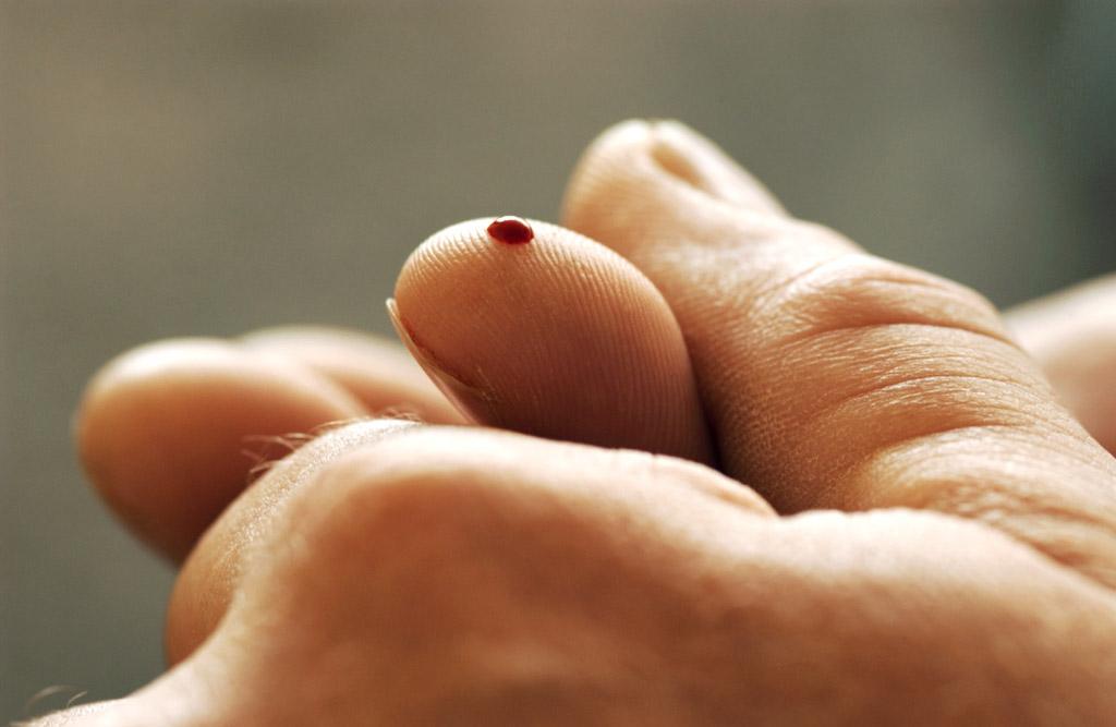 blut vergleich gesund und blutkrebs